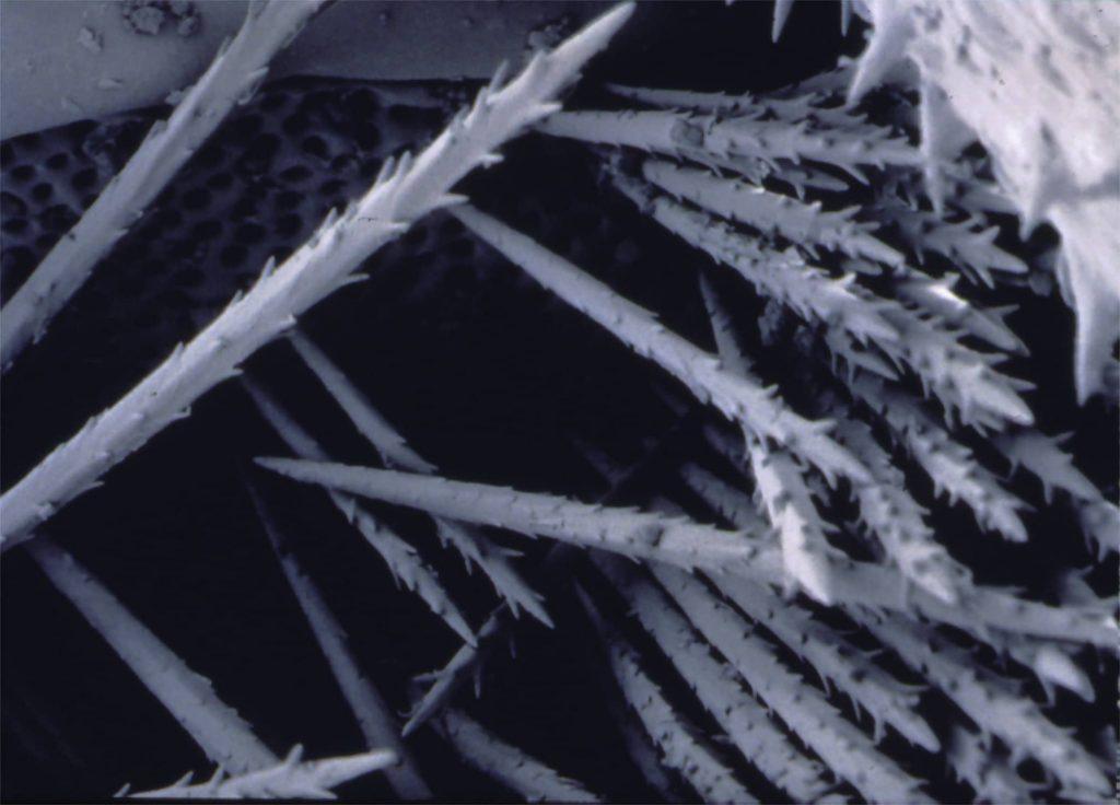 Toxic hairs (setae) of the oak processionary caterpillar